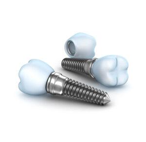 Implantes Dentários Colocados