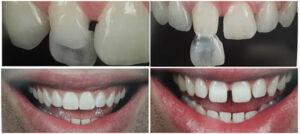 Lentes de Contacto Dentárias