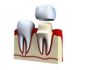 Próteses Dentárias Coroa 03