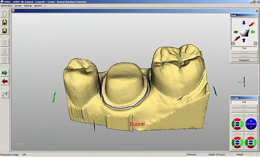 Scan 3D CAD CAM 02
